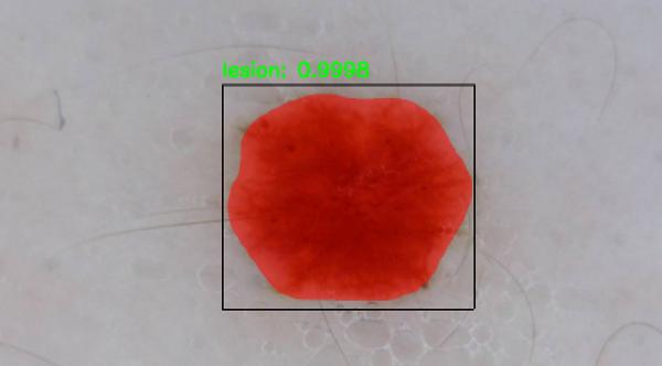 Utilize a Mask R-CNN to automatically segment skin lesions for cancer identification using Mask R-CNN